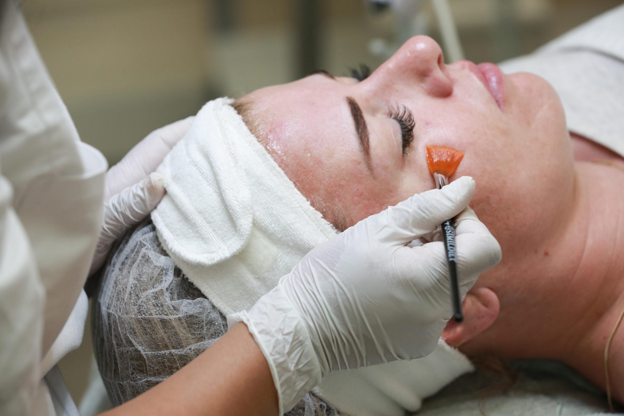 Wat doet een peeling voor de huid?